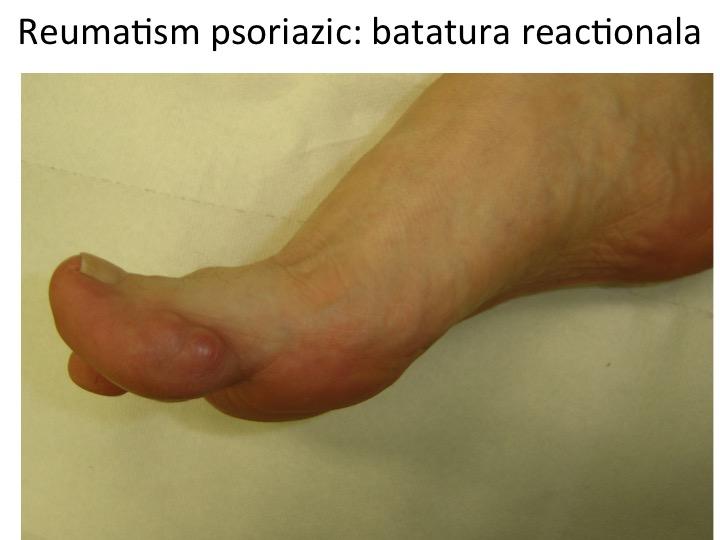 Batatura din reumatism psoriazic