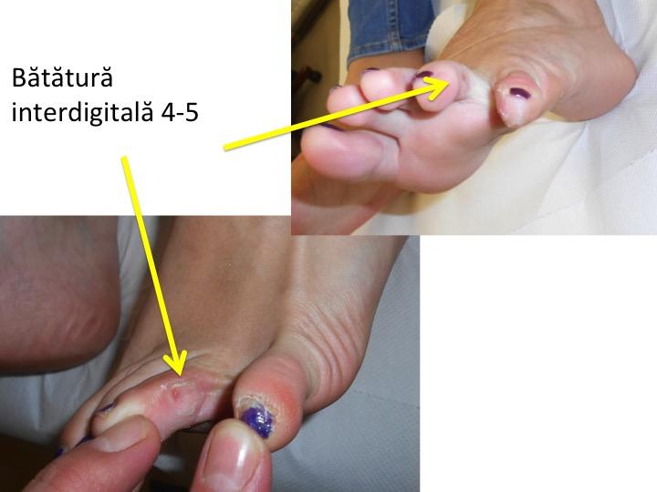 Batatura inter-digitala 4-5