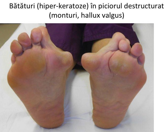 Bataturile piciorului destructurat