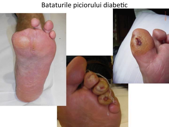 Bataturile piciorului diabetic