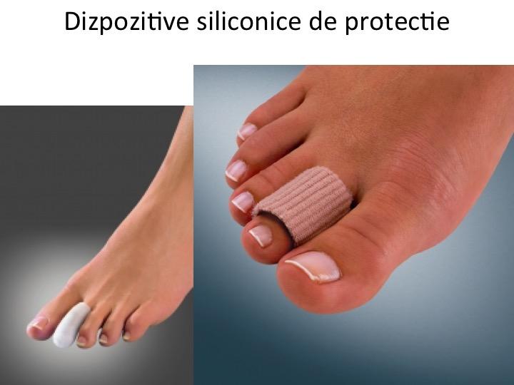 Dispozitiv siliconic de protectie 2