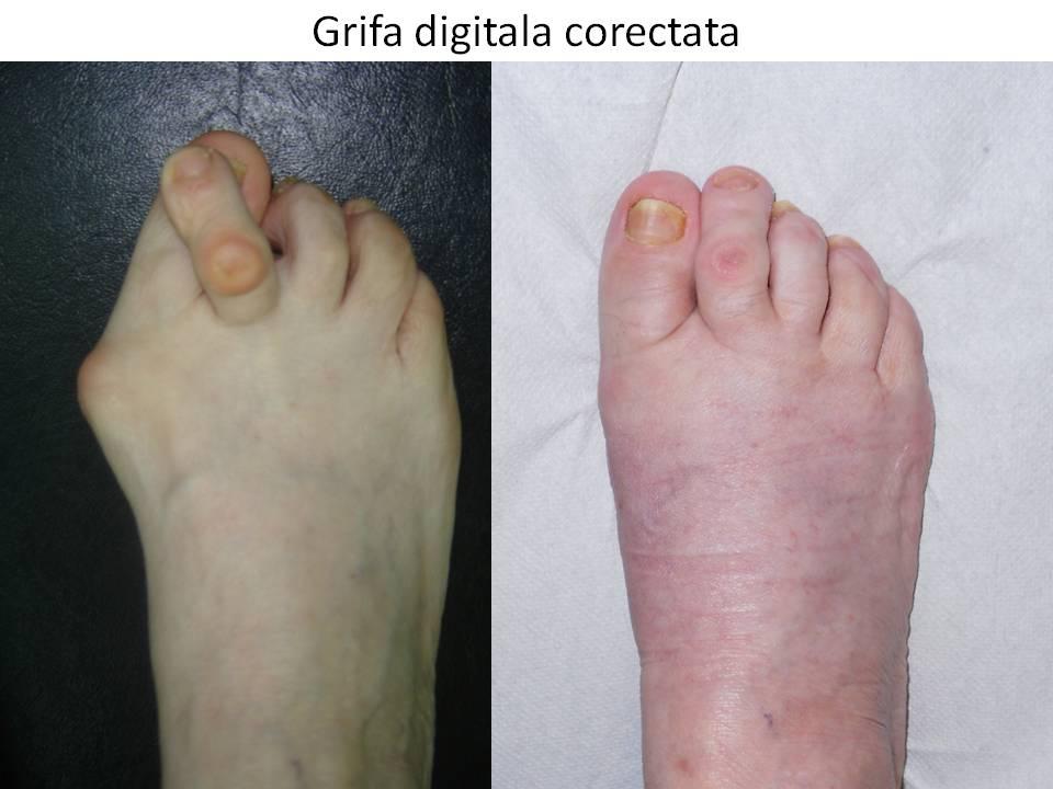 Grifa digitala corectata