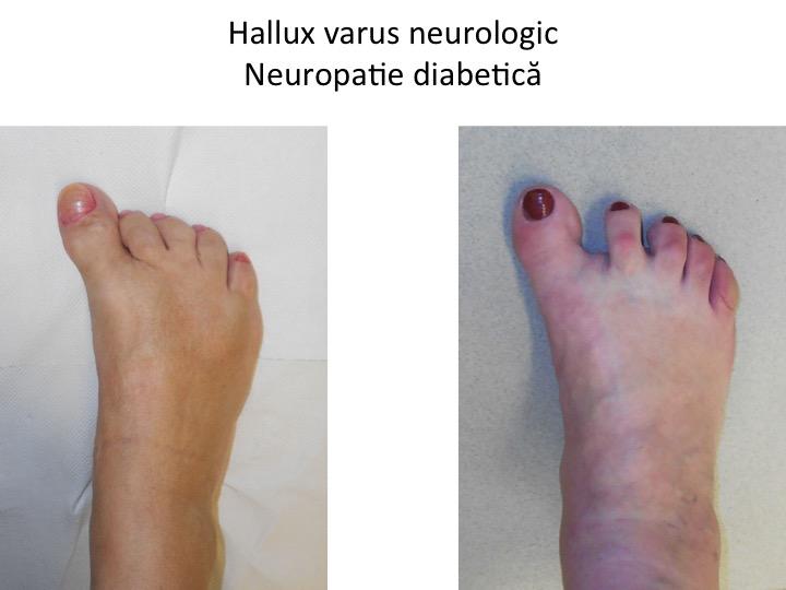 H varus neurologic diabet