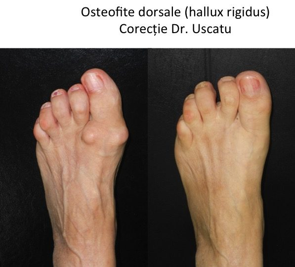 HR osteofite dorsale