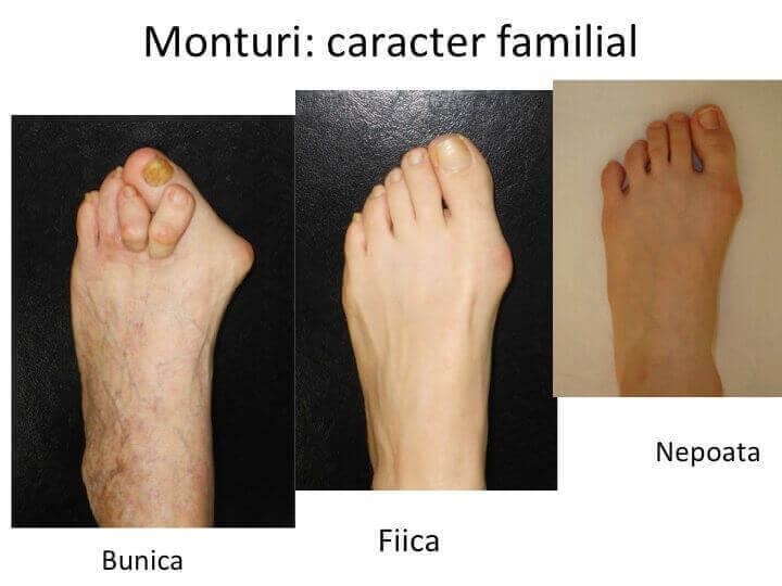 HV caracter familial