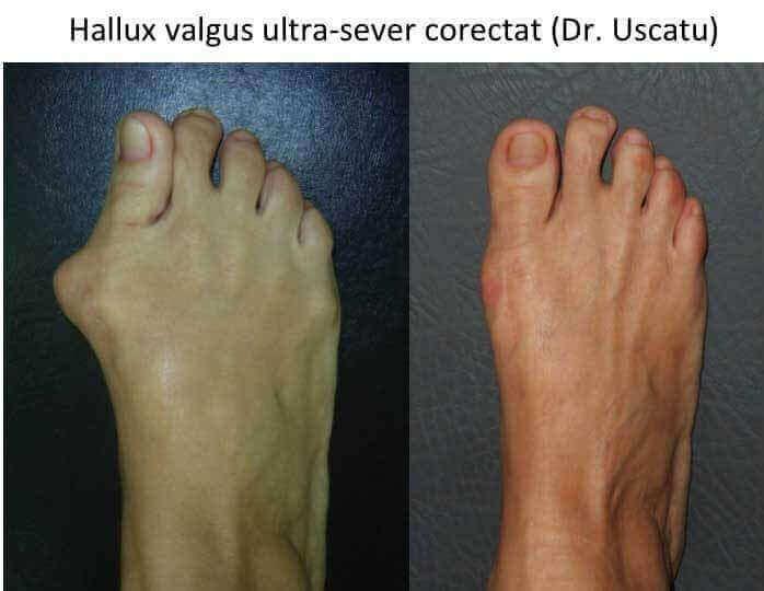 HV ultrasever Iosub Anca