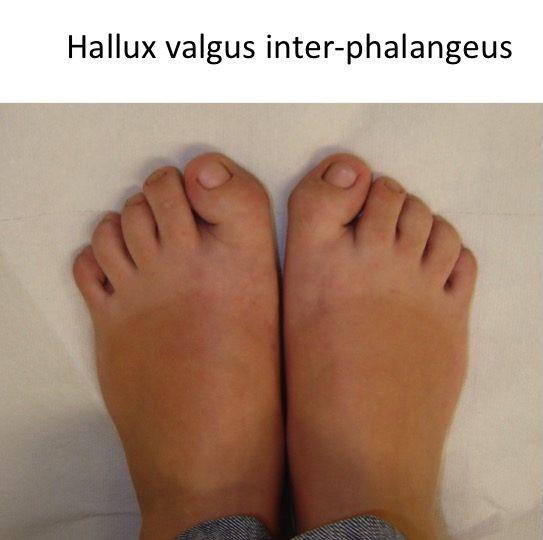 Hallux valgus inter-phalangeus