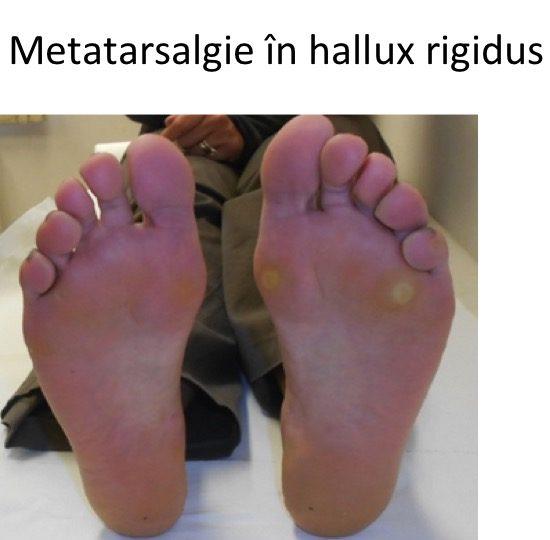Metatarsalgie HR