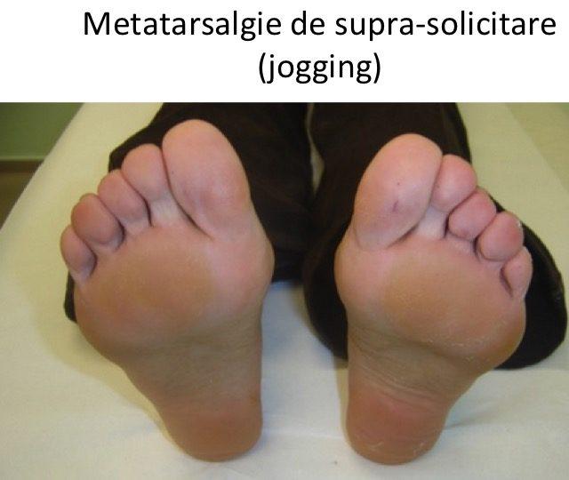 Metatarsalgie jogging