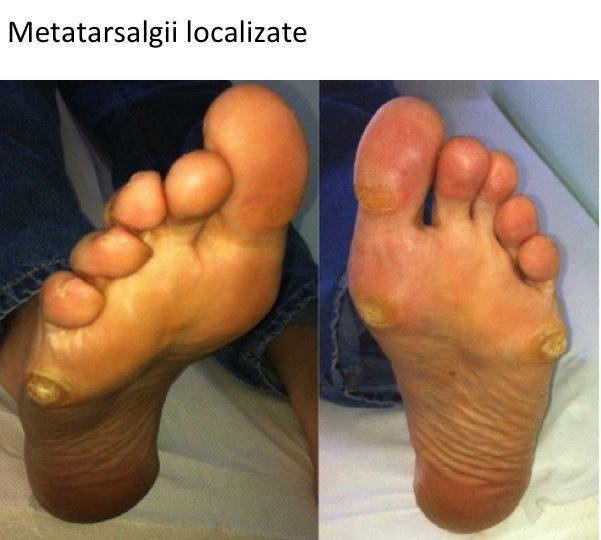 Metatarsalgie localizata