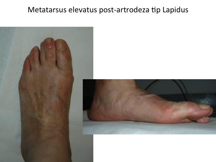 Metatarsus elevatus post Lapidus