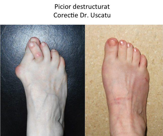 Picior destructurat Andries