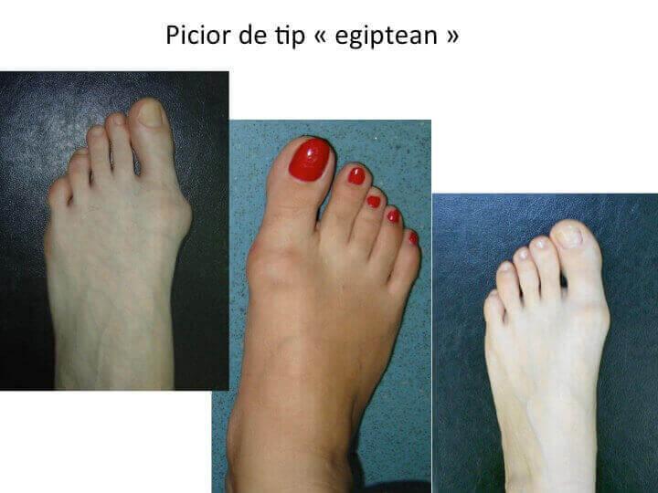 Picior egiptean