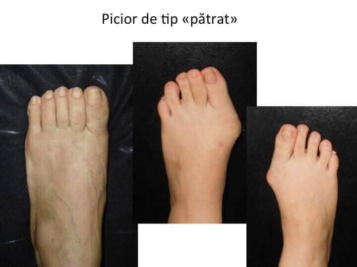 Picior patrat
