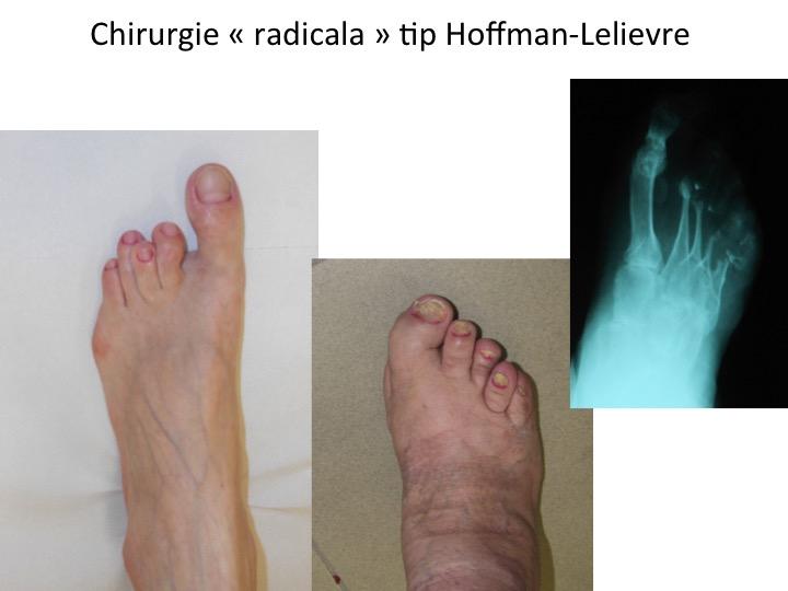 Picior reumatoid Lelievre 3