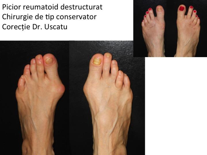 Picior reumatoid Petrescu