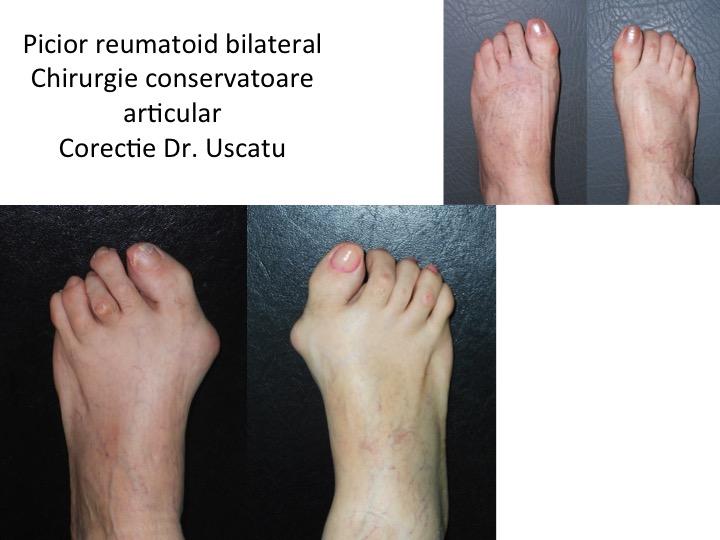 Picior reumatoid bilateral Andrei