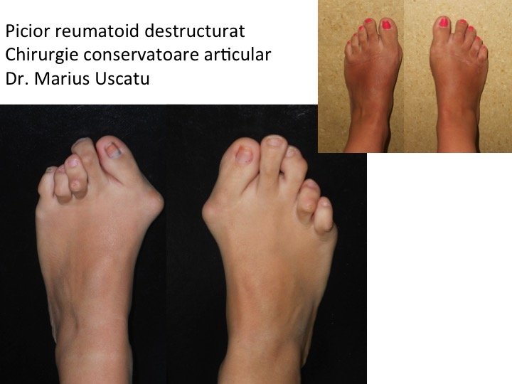 Picior reumatoid bilateral Baiu