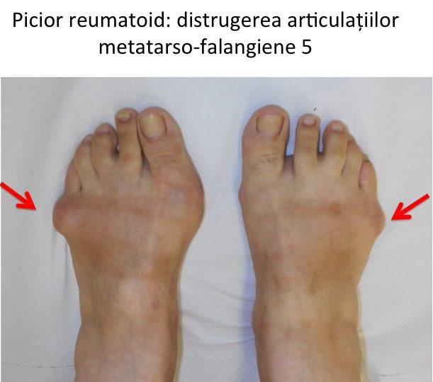 Picior reumatoid distrugere MT-P 5