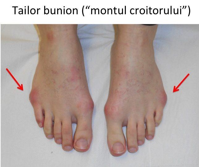 Tailor bunion bilateral