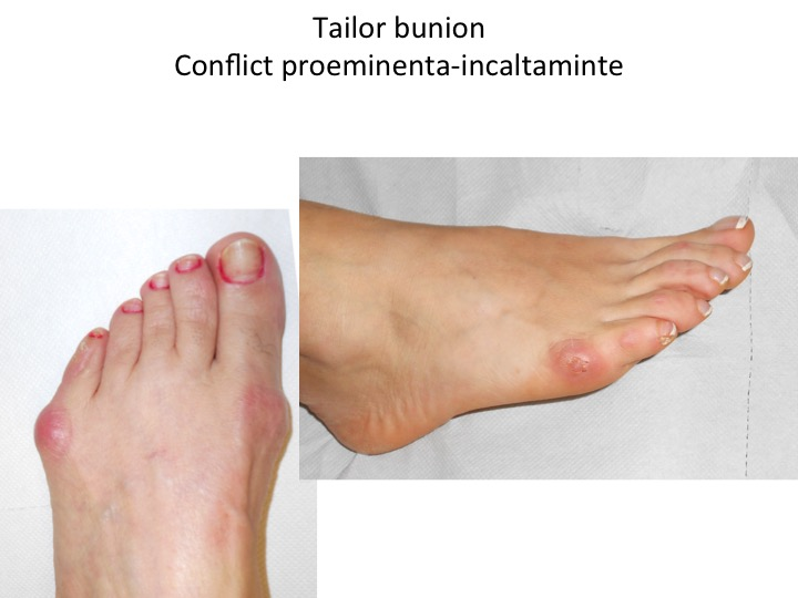 Tailor bunion conflict