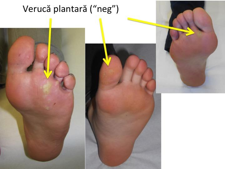 Efectele reumatismului ?i simptomele ?i tratamentul