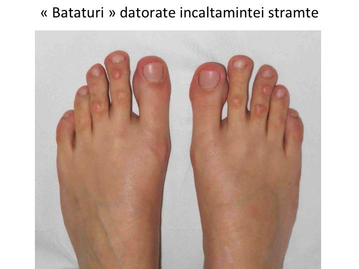 Remediu Acasă Pentru Durere La Articulația Degetului Mare Tratament remedii populare genunchi