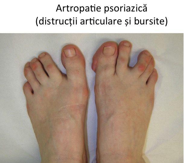 Artropatie psoriazica
