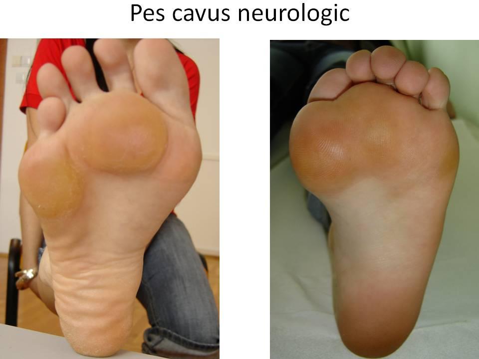 Batatura Pes cavus neurologic