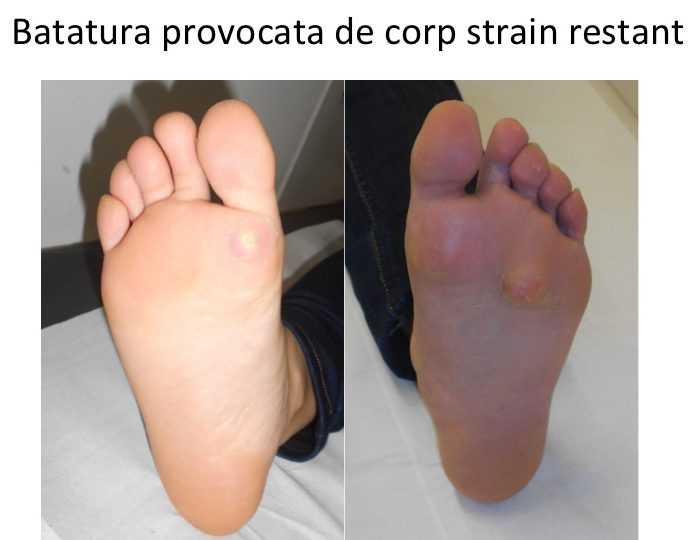 Batatura corp strain