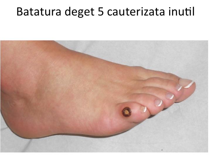 Batatura deget 5 cauterizata inutil