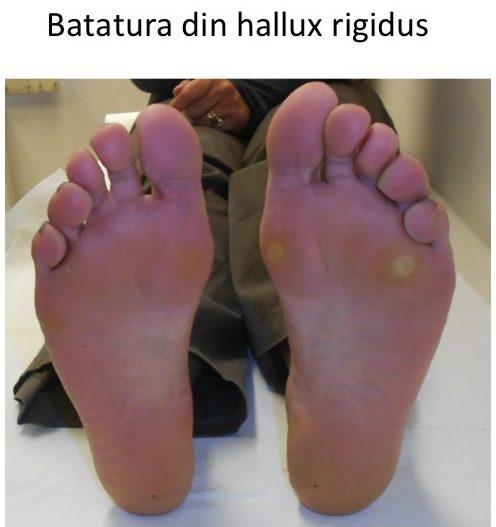 Batatura hallux rigidus