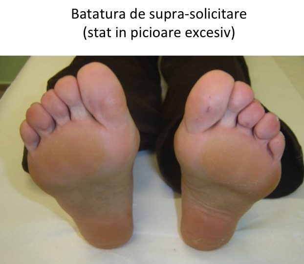 Batatura ortostatism