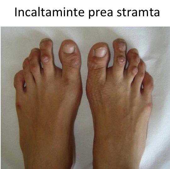 Bataturi degete-pantofi stramti