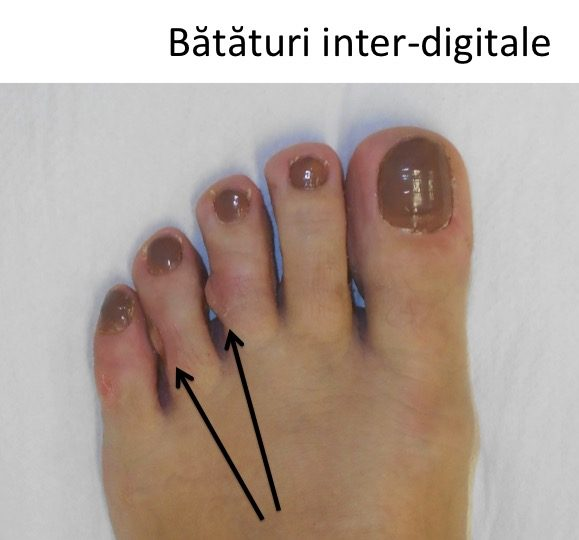 Bataturi inter-digitale 4 si 5