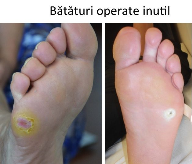 Bataturi operate inutil
