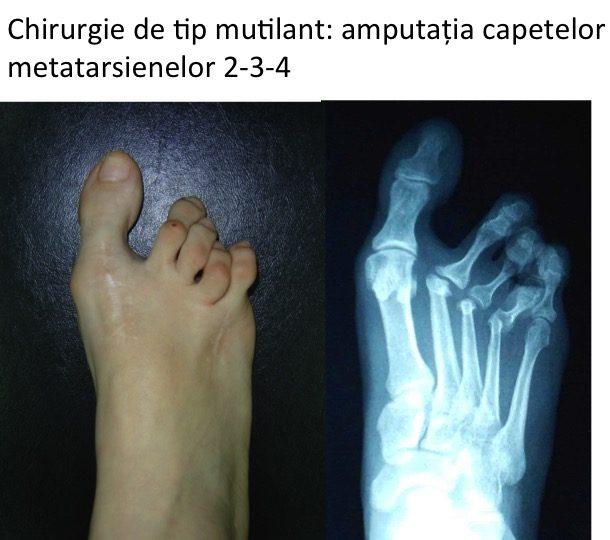Chirurgie mutilanta Pa
