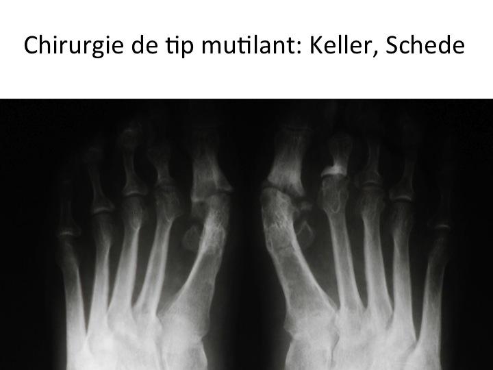 Chirurgie mutilanta site