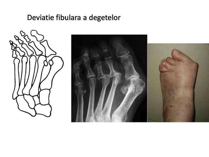 Deviatie fibulara