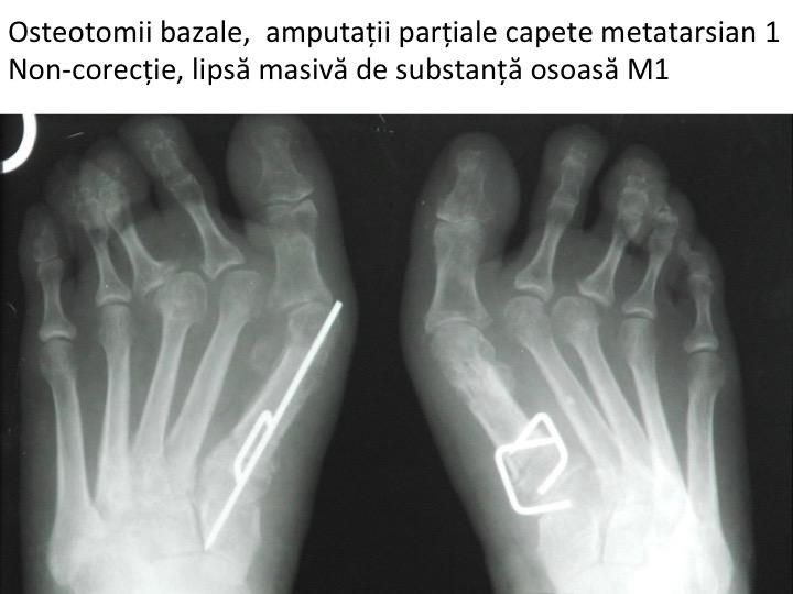 Esec bilateral Dima osteotomii bazale
