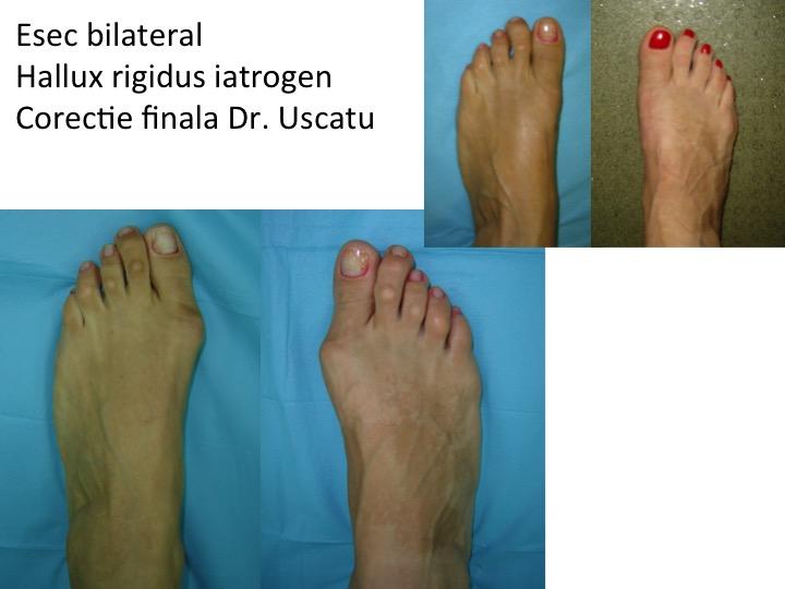 Esec bilateral HR iatrogen