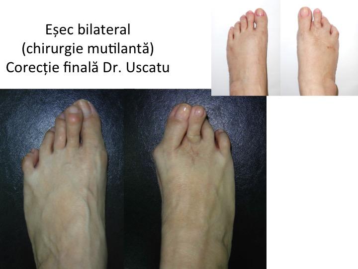 Esec bilateral Iagar