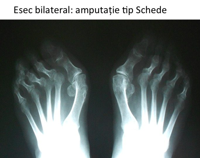 Esec bilateral