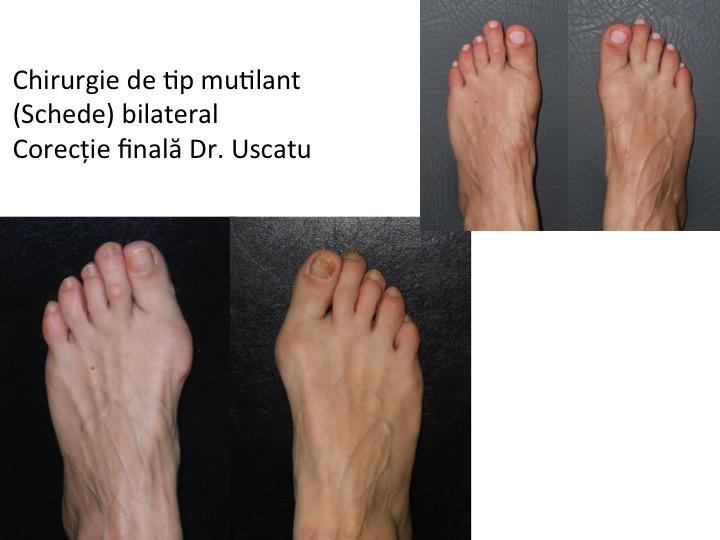 Esec bilateral Schede Dr