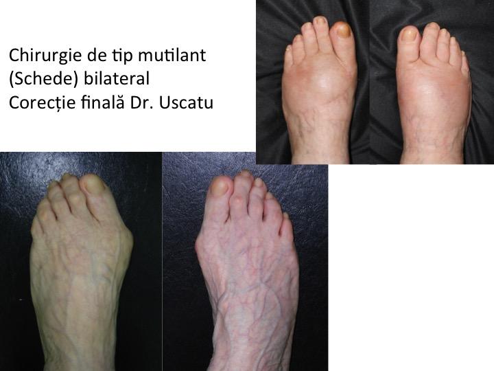 Esec bilateral Schede Pandurita