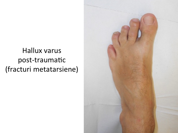 H Varus post-traumatic