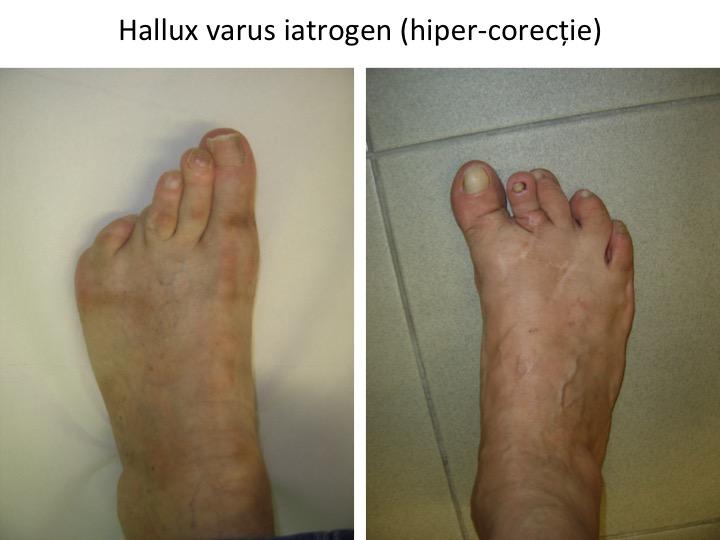 H varus iatrogen hiper-corectie