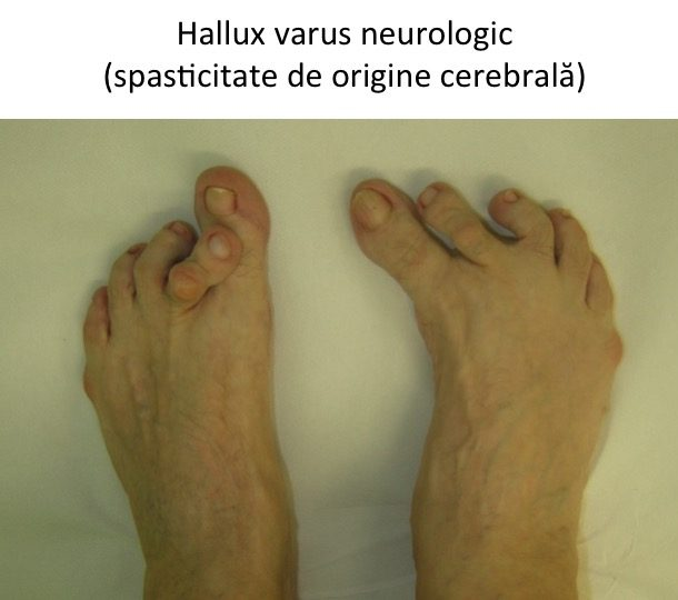 H varus neurologic cerebral