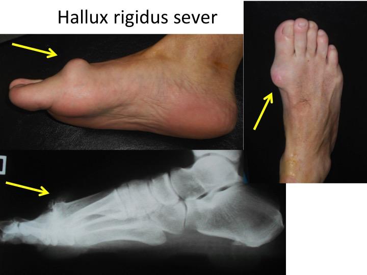 Medicina naturista in tratamentul artritei reumatoide