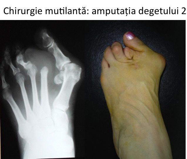 HV Amputatie deget 2